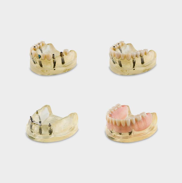 Odbudowa protetyczna na implantach